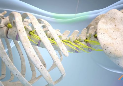 3D animation of operational techniques in spinal surgery #casestudy