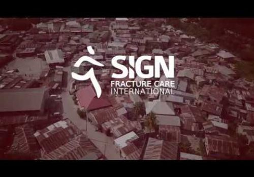 Creating Equality of Fracture Care: SIGN in Tanzania (Health Video Production Washington DC)