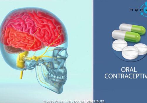 Migraine mechanism of disease (MoD) - 3D medical animation